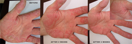 Psoriasis Before-After Picture